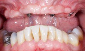 before Bob's dental implants