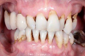 case 1 before dentures