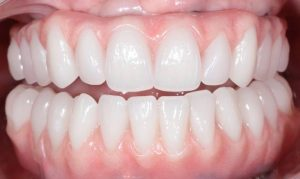 after Esta's dental implants