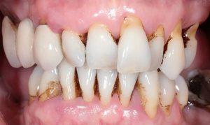 before Esta's dental implants
