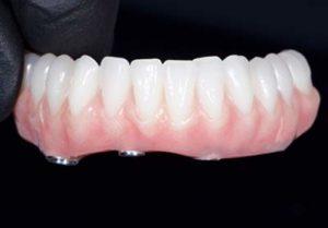 All on 4 lower denture