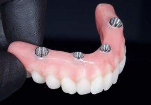 All on 4 upper denture