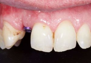 Dental implant at front of mouth