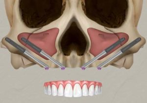 Zygomatic implants are placed in the cheekbone (Zygoma)