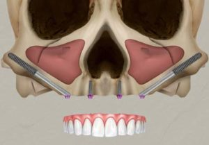 Zygomatic implants can be used with standard implants