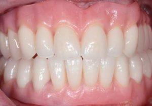 After immediate dentures