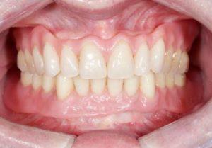 Complete mini implants case study with dentures