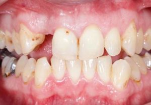 Gap before the implant